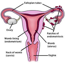 endometriosisdiag dari www.med.yale.edu